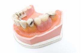入れ歯については痛みや違和感、口臭などで、はじめてご来院される方が多くいらっしゃいます