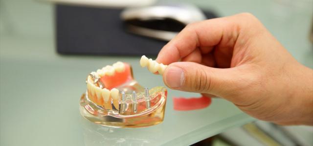 現在、歯を失った方にとって、重要な選択肢のひとつとなっているインプラント