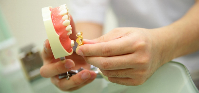 歯を失った場合の選択肢のひとつとして、ブリッジがあります
