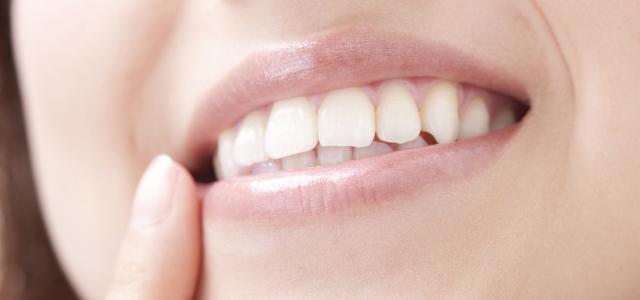 笑顔に自信がつく歯科治療、それが矯正です