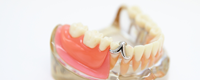 入れ歯の悩みは何でも伺います